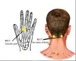 Acupressuur GB20 + ex17, hoofdpijn, nekpijn, zere ogen, energie, vermoeidheid, gezondheid-workshops
